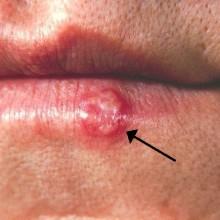 Herpes labial remedios caseros